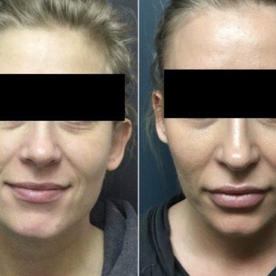 DermalFIllers&Botox_01