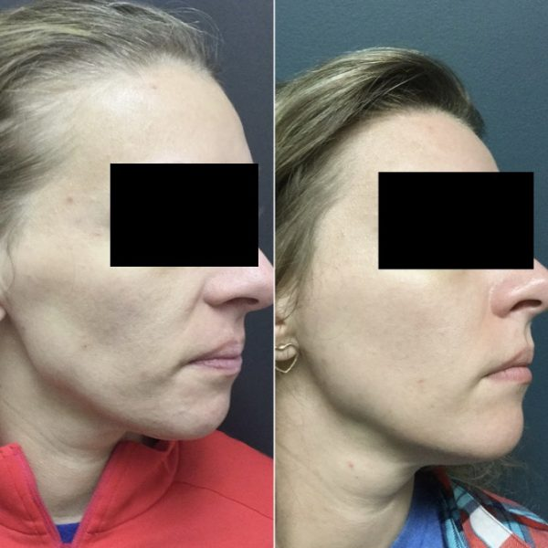 chemical peels, dermal filler and Botox