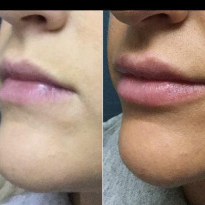 lip filler_01