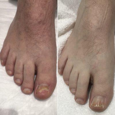 toe nail fungus laser therapy